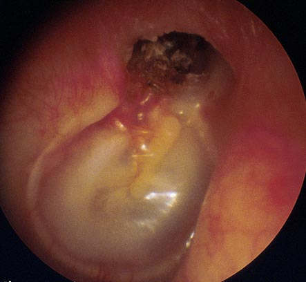 http://www.ent.com.hk/images/diagnosis/ear/cholesteatoma-1.jpg